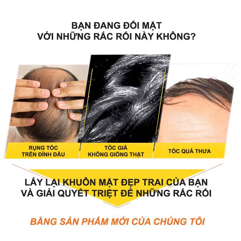 Đau đầu vì rụn tóc, hói đầu