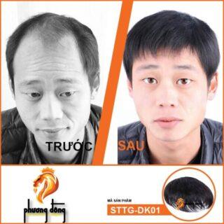 TOC-GIA-NAM-DANG-KEP-TRUOC-SAU-01-01