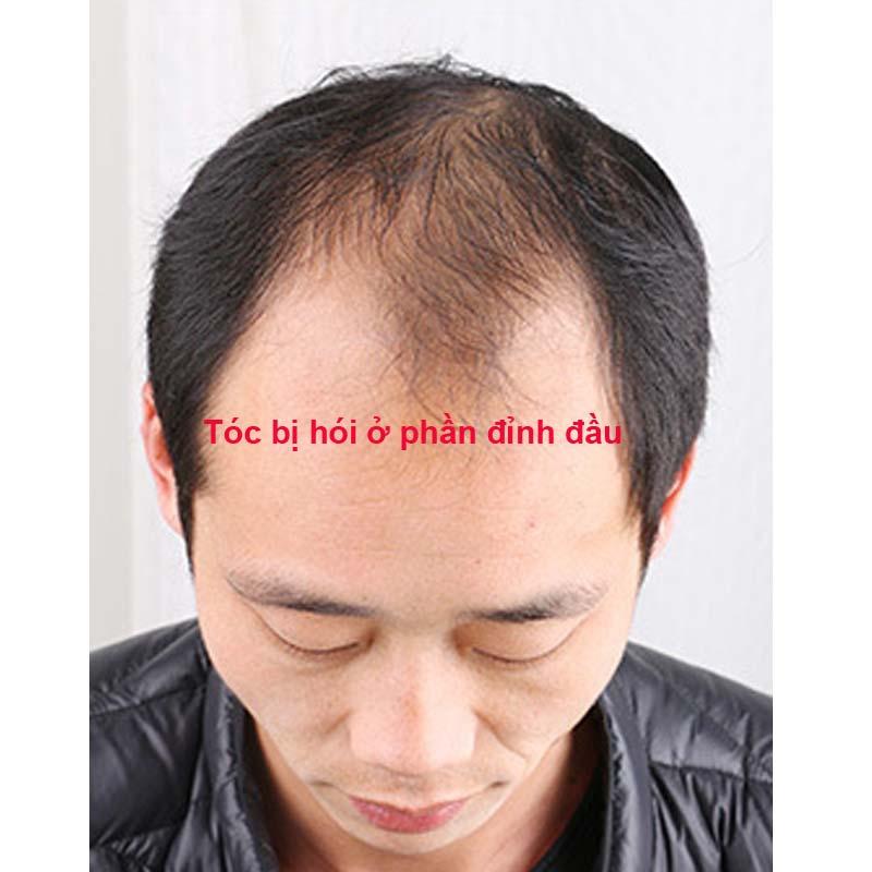 Tóc bị hói phần đình đầu