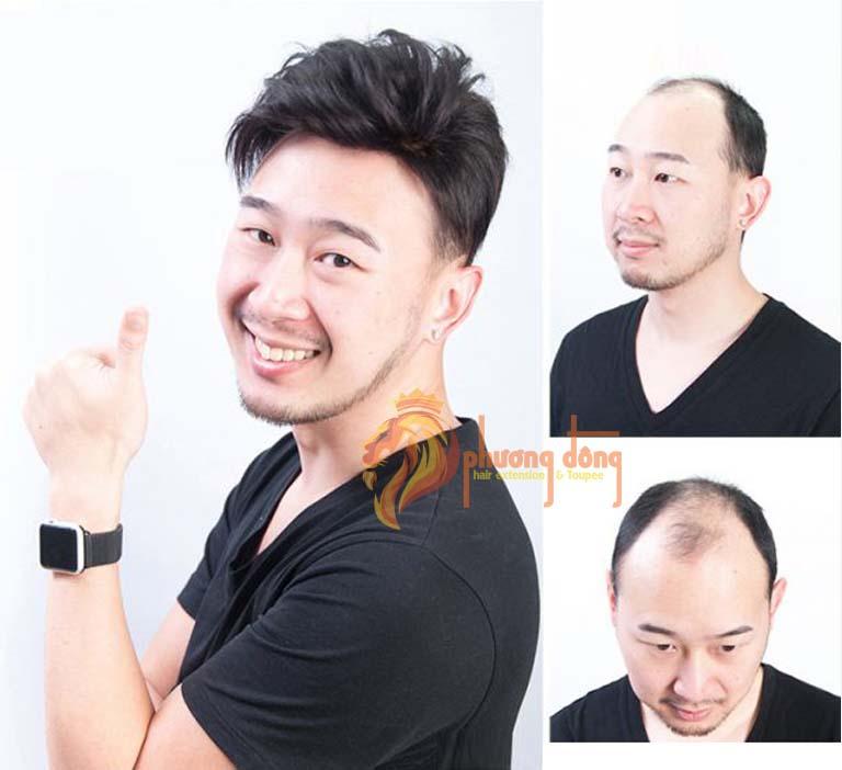 tóc giả che hói bằng tóc thật