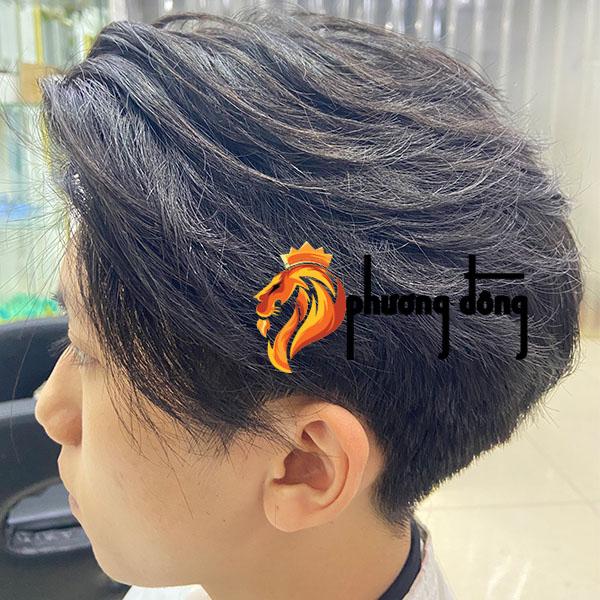 thanh niên bị rụng tóc sử dụng tóc giả Phương Đông