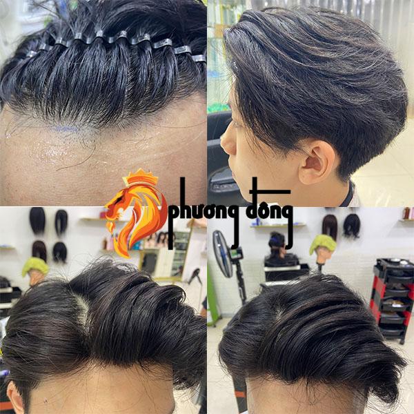Tóc giả nam giải quyết triệt để vấn đề rụng tóc