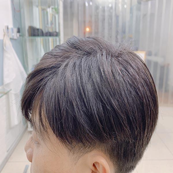 trị hói đầu bằng tóc giả