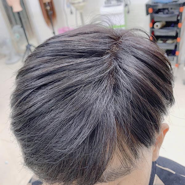 Tóc giả che hói cho nam giới bị rụng tóc